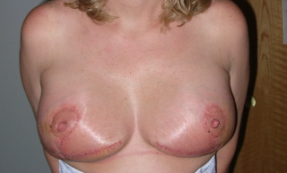 4 weel po front view of the breasts