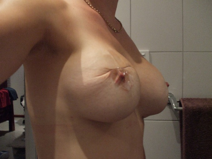 left breast bottoming out- double bubble