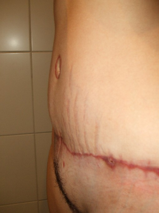 inscision finally closed at 7 weeks!- scar is looking nasty!