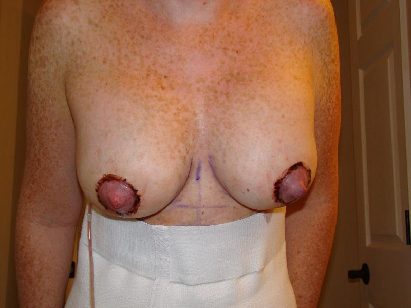 Front shot of new girls - once again...areola/nipple will move up when implants drop
