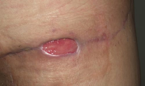 2 Months- Opneing where drain/seroma was. Big, but not deep or painful. It's always covered.