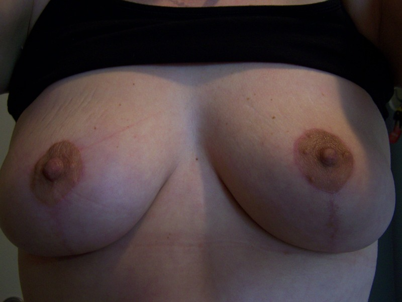 breast lift 2 months 3 weeks