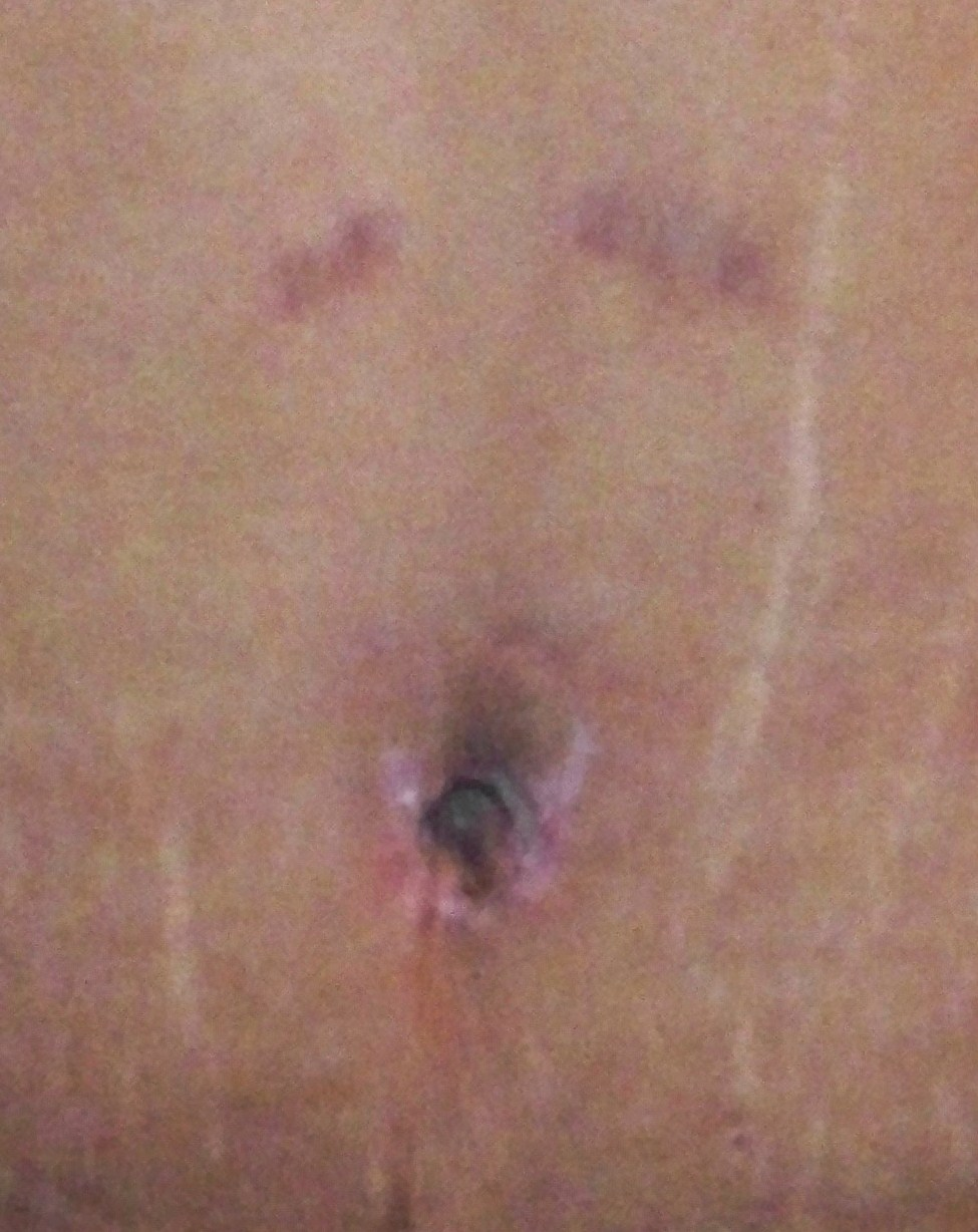3 week belly button-dr says good
