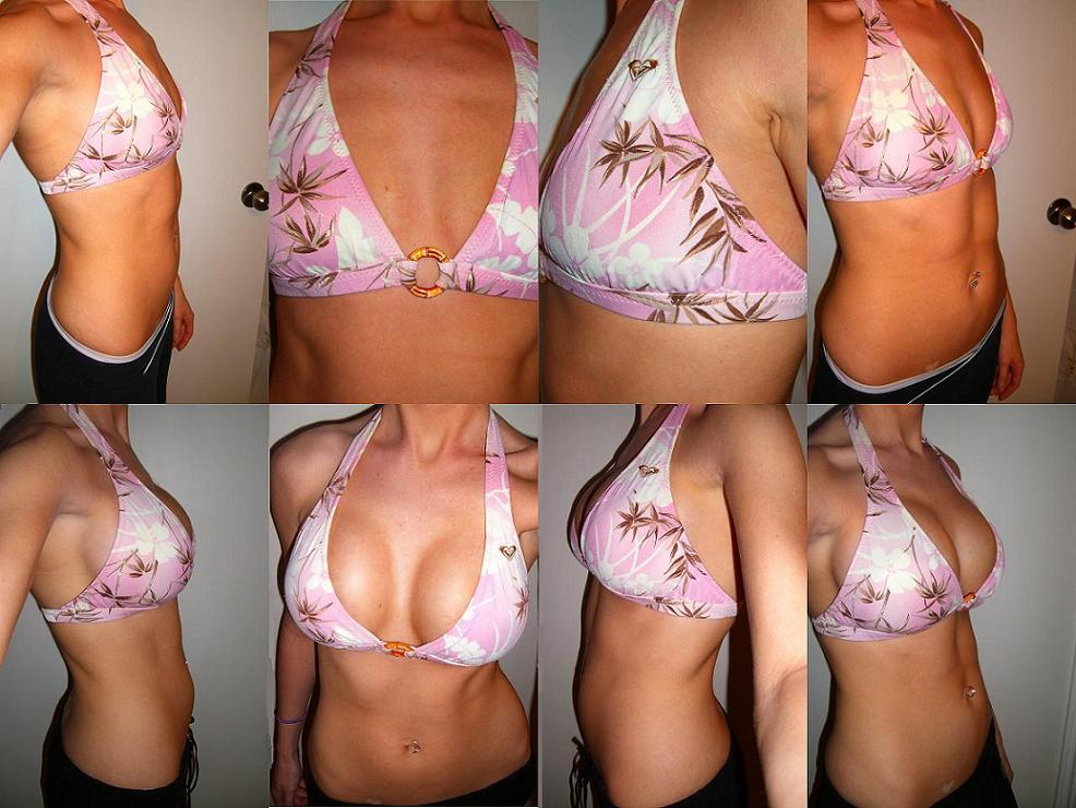 Before And After Bikini Pics 2 Weeks Post Op Breast