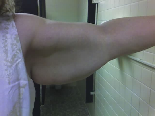 Arm Before Surgery