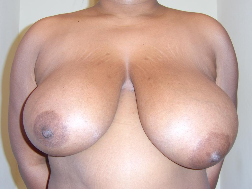 Breast Before Surgery - front view