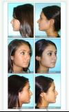 Nose Job- Rhinoplasty