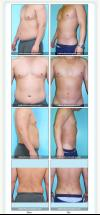 Liposuction- Abdominal Etching