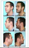 Rhinoplasty in Miami