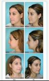 Rhinoplasty Specialist in Miami