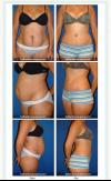 New Body after Tummy Tuck (Miami)