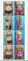 Liposuction- Abdomen and Flanks