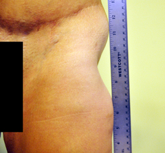 divot from lipo/staph