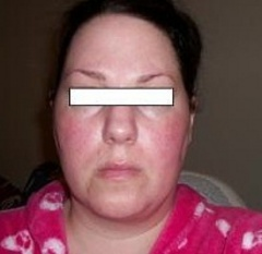 36 year old female with shapeless, sagging face - need prof advice - photo attached