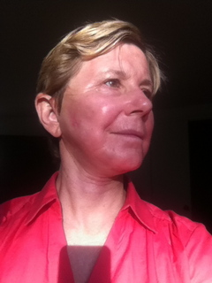 one month after CO2 laser and lowerface/ neck lift, skin weirdly mottled
