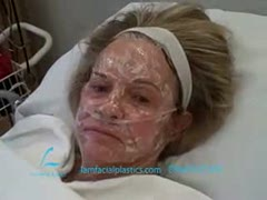 Laser Skin Resurfacing, Laser Treatments Videos - Judy's Facial Plasma Resurfacing Video Diary