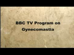 Male Breast Reduction (Gynecomastia) Videos - San Francisco Gynecomastia Surgery - BBC  comes to USA to film male breast reduction