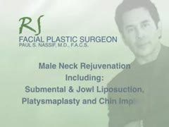 Cheek Implants, Lift, Augmentation Videos - Male neck rejuvenation (plastic surgery)