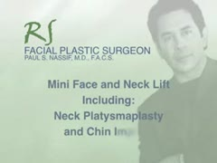 Chin/Jaw Implants, Augmentation Videos - � Mini Face and Neck Lift, including neck platysmaplasty and chin implant