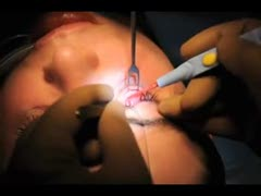 Plastic Surgery Videos - Correcting Deep Tear Trough Deformity with Custom Carved Implant