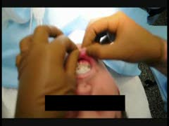 Plastic Surgery Videos - Correcting Lip & Chin Descent After Genioplasty
