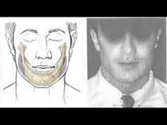 Chin/Jaw Implants, Augmentation Videos - Jaw Implant Surgery - Mandible Implants