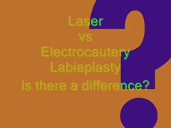 Vaginoplasty, Labiaplasty Videos - Laser vs Cautery Labiaplasty