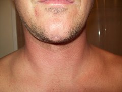 Can scar revision or other procedure help my chin scar?