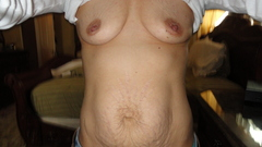 Breasts/Tummy Before Pic