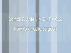 Nose Surgery, Nose Job, Rhinoplasty Videos - Get to know New York plastic surgeon Dr. Darrick Antell