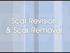 Scars Videos - Dr. Antell of NYC discusses Scar Revision options