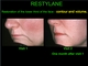 Effective Restoration of Lip Volume and the height of the lower third of the face