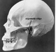 ZYGOMATIC ARCH