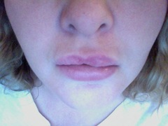 what can i do for my upper lip?