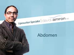Dr.Amron's Approach to Abdominal Liposuction