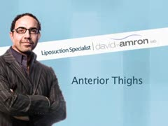 Liposuction, Alternative Lipo Treatments Videos - Anterior Thigh Liposuction