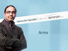 Dr.Amron's Approach to Arm Liposuction