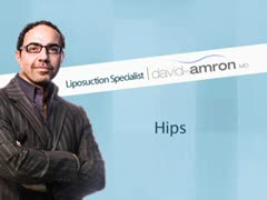 Liposuction, Alternative Lipo Treatments Videos - Hip Liposuction