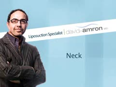 Liposuction, Alternative Lipo Treatments Videos - Neck Liposuction