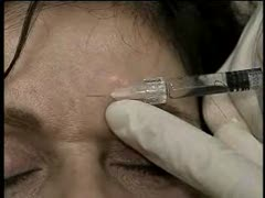 Glabellar Botox treatment