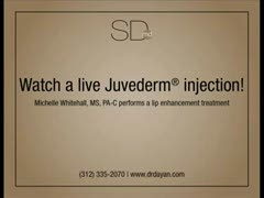 Lip Augmentation, Enhancement, Reduction, Lift Videos - Watch a Live Juvederm Injection!