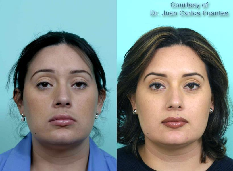 How Can I Improve A Heavy Brow After Plastic Surgery Answers