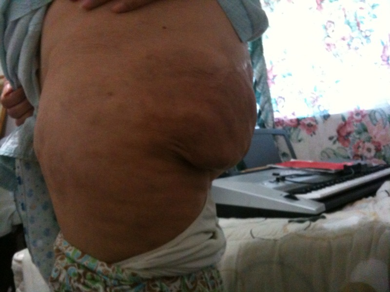 had silicone butt injections is it   Plastic Surgery, Answers ...