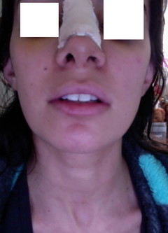 I had closed rhinoplasty done 6 days ago, and my nostrils look obviously uneven, Im so worried.. is this normal?