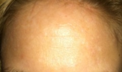 flat, white scars and pigment on forehead. what procedure do I need?