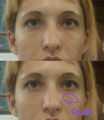 Denting under eye after fillers, | Plastic Surgery, Answers