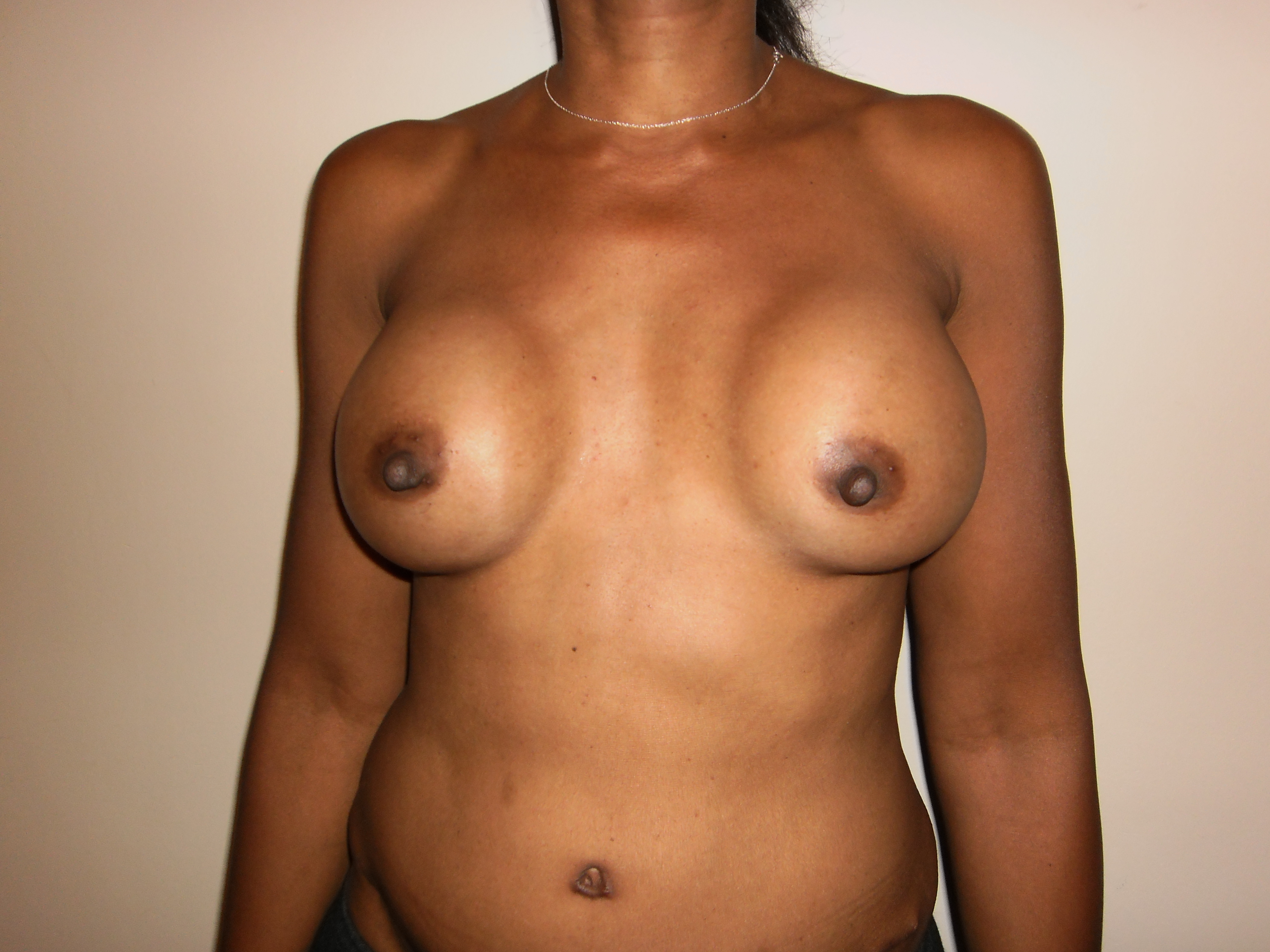 breast reduction and band jpg 853x1280