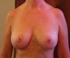 Breasts after
