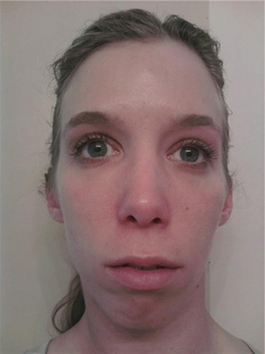 An opinion on possible cosmetic procedures please?