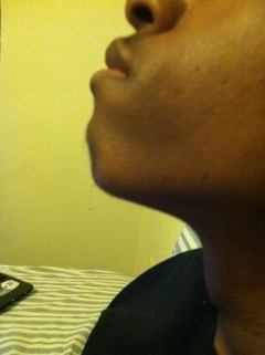 Chin fatty tissue (not on my neck)